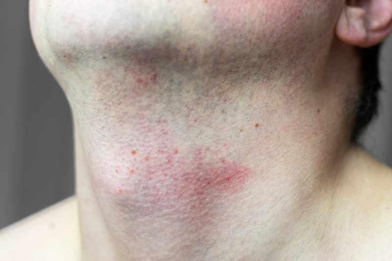 Podrażnienia po goleniu twarzy
